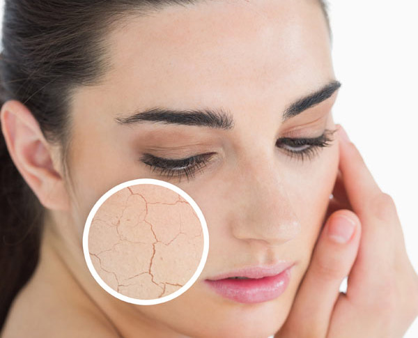 How To Get Rid Of Skin Irritation On Face