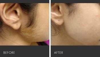 Special $25.00 Laser facial hair removal!!!