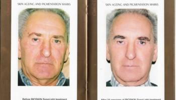 Bio-dermabrasion, Acne, Scars & Rejuvenation Facial
