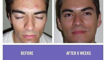 Rodan & Fields Skin Care