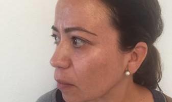 BOBBYS skin care clinic. Derma blading