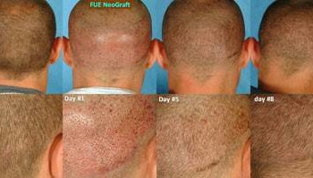 NeoGraft - Hair Restoration