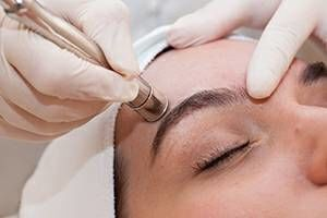 Photo #1: Microdermabrasion