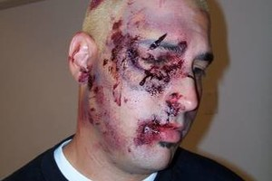 Photo #17: SPECIALIZE IN CREATURES AND GORE! Make Up Artist booking for Halloween