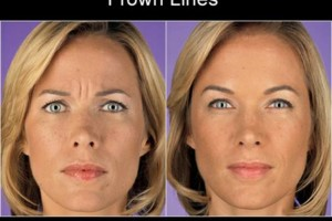 Photo #1: The New You.....Beautiful Looking Skin ......Try for Free