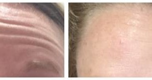 Photo #2: The New You.....Beautiful Looking Skin ......Try for Free