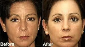Photo #3: The New You.....Beautiful Looking Skin ......Try for Free