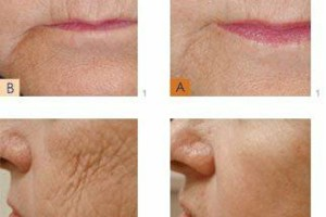 Photo #5: The New You.....Beautiful Looking Skin ......Try for Free
