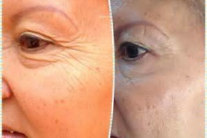 Photo #7: The New You.....Beautiful Looking Skin ......Try for Free