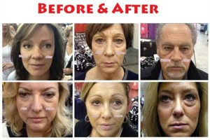 Photo #8: The New You.....Beautiful Looking Skin ......Try for Free