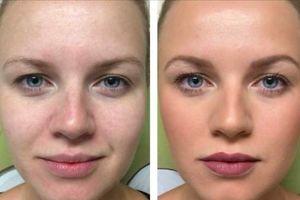 Photo #1: Skin care. Gold Mask