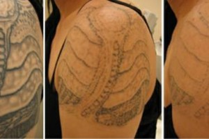 Photo #2: Discount Tattoo Removal