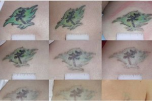 Photo #1: Discount Tattoo Removal