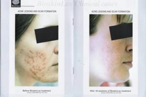 Photo #5: Bio-dermabrasion, Acne, Scars & Rejuvenation Facial