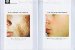 Photo #4: Bio-dermabrasion, Acne, Scars & Rejuvenation Facial