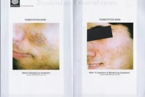 Photo #3: Bio-dermabrasion, Acne, Scars & Rejuvenation Facial