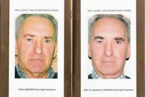 Photo #1: Bio-dermabrasion, Acne, Scars & Rejuvenation Facial