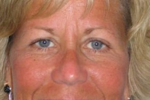 Photo #16: Permanent Cosmetics By Theresa! Eyebrows, Eyeliner & Lip Liner procedures!
