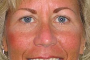 Photo #15: Permanent Cosmetics By Theresa! Eyebrows, Eyeliner & Lip Liner procedures!