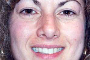 Photo #14: Permanent Cosmetics By Theresa! Eyebrows, Eyeliner & Lip Liner procedures!