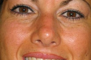 Photo #13: Permanent Cosmetics By Theresa! Eyebrows, Eyeliner & Lip Liner procedures!