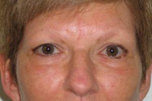 Photo #10: Permanent Cosmetics By Theresa! Eyebrows, Eyeliner & Lip Liner procedures!