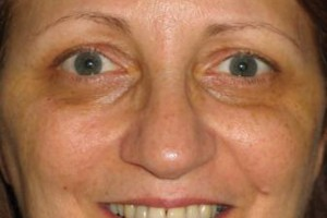 Photo #8: Permanent Cosmetics By Theresa! Eyebrows, Eyeliner & Lip Liner procedures!