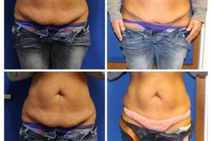 Photo #2: WANT A FLAT TUMMY or YOUNGER FACE?! Turn Back Time!