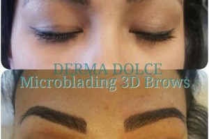 Photo #7: Derma Dolce. NATURAL Permanent MAKEUP!!