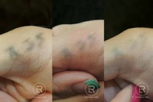 Photo #22: Renewal Laser Clinic - Best Tattoo Removal in Minnesota