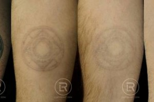 Photo #21: Renewal Laser Clinic - Best Tattoo Removal in Minnesota