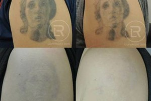 Photo #19: Renewal Laser Clinic - Best Tattoo Removal in Minnesota