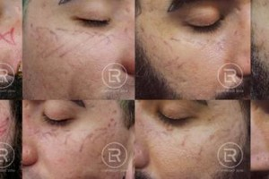 Photo #8: Renewal Laser Clinic - Best Tattoo Removal in Minnesota