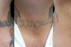 Photo #6: Renewal Laser Clinic - Best Tattoo Removal in Minnesota
