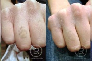 Photo #4: Renewal Laser Clinic - Best Tattoo Removal in Minnesota