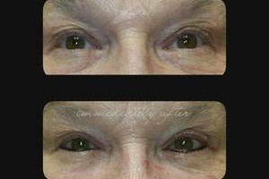 Photo #4: Permanent Great Looks. Microblading Eyebrows