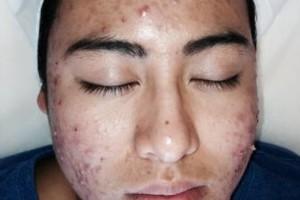 Photo #12: BOBBYS skin care clinic. Derma blading