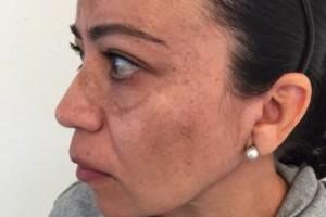 Photo #5: BOBBYS skin care clinic. Derma blading