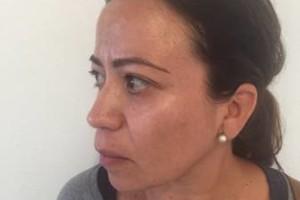 Photo #1: BOBBYS skin care clinic. Derma blading