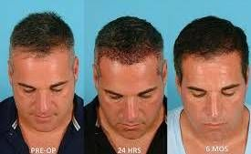 Photo #4: NeoGraft - Hair Restoration