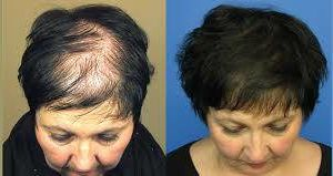 Photo #3: NeoGraft - Hair Restoration