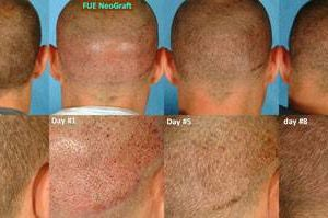 Photo #1: NeoGraft - Hair Restoration