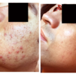 Photo #1: Beautify Your Skin